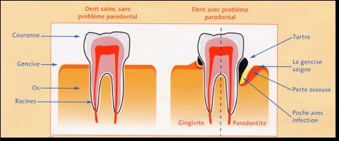 Représentation schématique de la progression de la parodontite