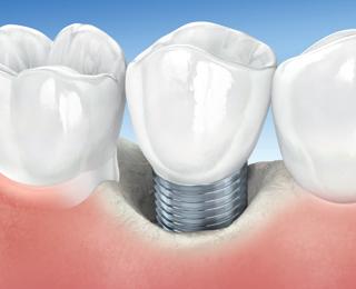 Peri-implantite